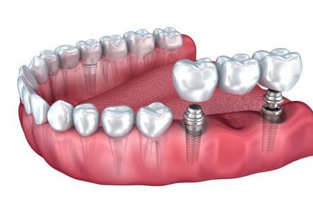 OPT_Pont-implant-450x303