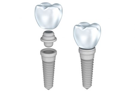 OPT_couronne-pont-implant1-450x303