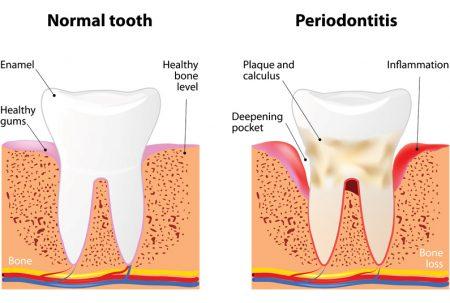 OPT_parodontie2-450x303